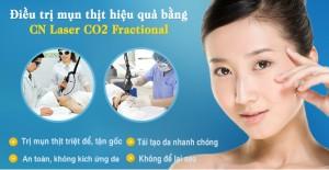Phương pháp điều trị mụn thịt quanh mắt hiệu quả nhất