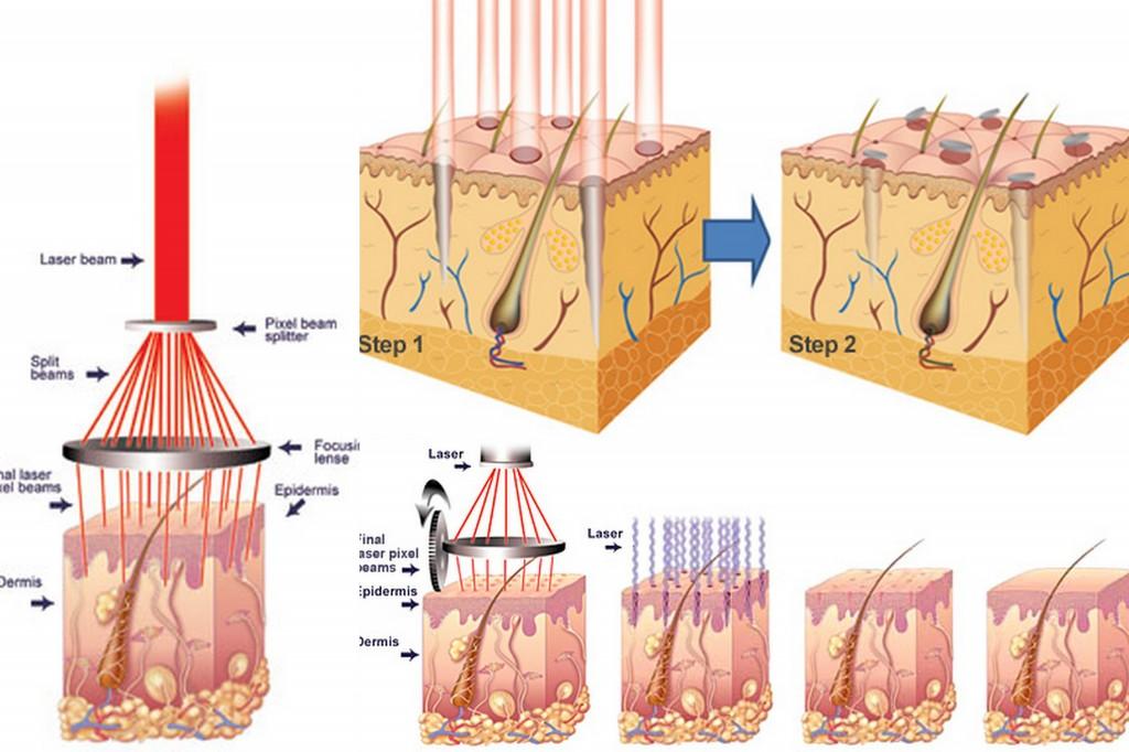 Điều trị mụn thịt quanh mắt3