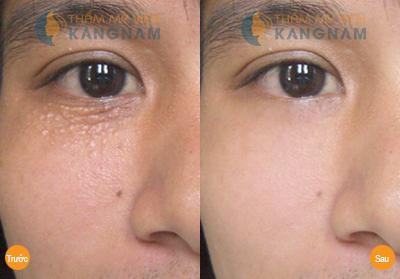 Điều trị mụn thịt quanh mắt5