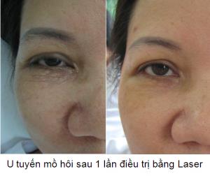 Điều trị mụn thịt mọc ở quanh mắt có khó lắm không?