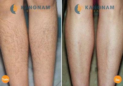 Tẩy lông chân vĩnh viễn công nghệ New E-Light6