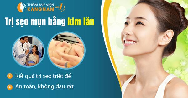 Trị sẹo mụn an toàn và hiệu quả với công nghệ kim lăn1