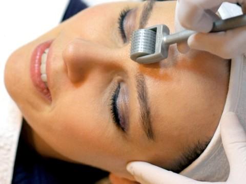 Trị sẹo mụn an toàn và hiệu quả với công nghệ kim lăn2