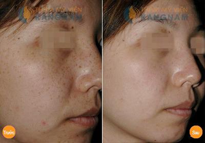 Trị nám da mặt triệt để công nghệ Laser Toning15