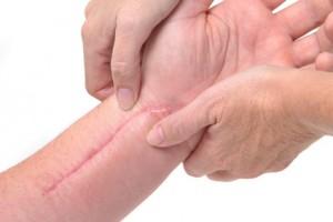 Trị sẹo lồi hiệu quả đến 99 % tại Kangnam9