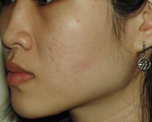 Trị sẹo lõm an toàn, hiệu quả tại Bệnh viện thẩm mỹ Kangnam1