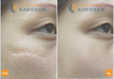 Trị sẹo lõm an toàn, hiệu quả tại Bệnh viện thẩm mỹ Kangnam3
