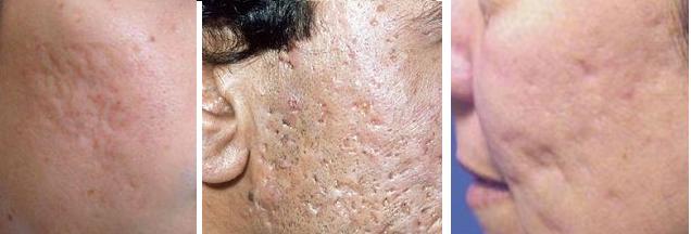 Trị sẹo lõm an toàn, hiệu quả tại Bệnh viện thẩm mỹ Kangnam4
