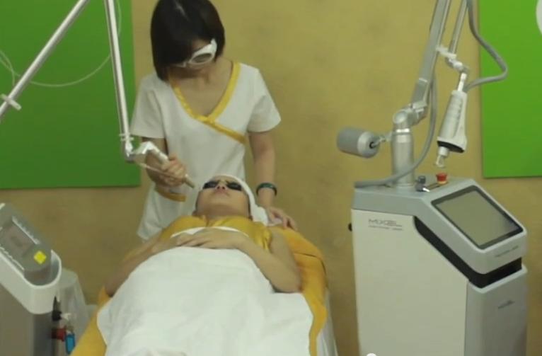 Trị sẹo lõm an toàn, hiệu quả tại Bệnh viện thẩm mỹ Kangnam8