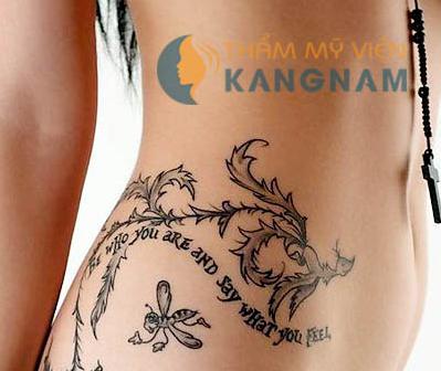 Xóa hình xăm an toàn và hiệu quả tại Bệnh viện thẩm mỹ Kangnam10