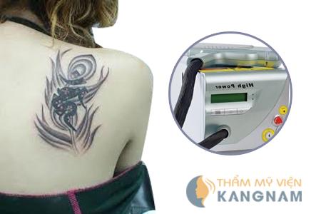 Xóa hình xăm an toàn và hiệu quả tại Bệnh viện thẩm mỹ Kangnam4