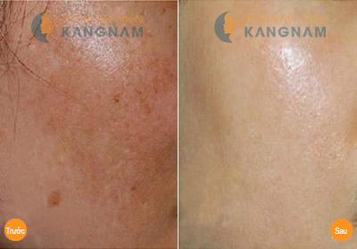 Cách trị nám da mặt hiệu quả đến 98% - Tại sao bạn không thử ngay? 4