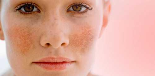 Cách trị nám da mặt hiệu quả nhất hiện nay