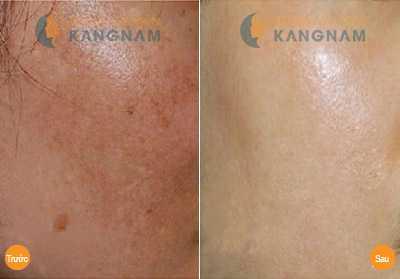Cách trị nám da mặt hiệu quả và an toàn