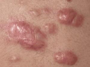 Điều trị sẹo lồi bằng laser liệu có mang lại hiệu quả cao?