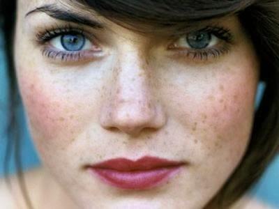 3 lời khuyên giúp bạn trị nám da tận gốc và triệt để bằng laser 5