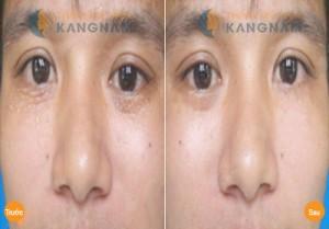 Cách chữa mụn thịt trên mặt không để lại sẹo?