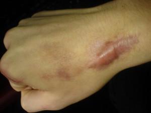 Cách trị sẹo lồi ở tay nhanh và an toàn nhất hiện nay?