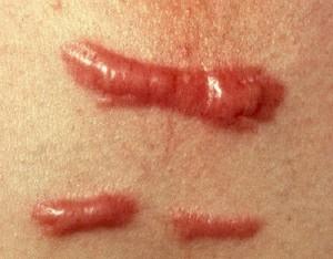 Sẹo lồi lâu năm ở tay có chữa được không?
