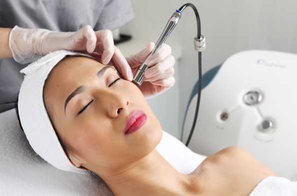 Phương pháp trị tàn nhang bằng Laser Toning