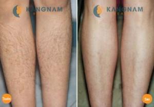 Triệt lông chân vĩnh viễn có hại đến da không ?