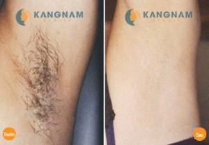 Triệt lông nách vĩnh viễn tại thẩm mỹ viện Kangnam hết bao nhiêu tiền?