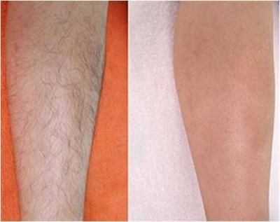 Cách tẩy lông chân nhanh và hiệu quả nhất hiện nay