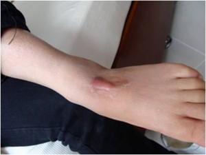 Trị sẹo lồi ở chân bằng cách nào hiệu quả nhanh nhất?