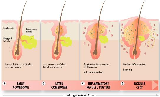 Cách chữa trị sẹo lồi lâu năm hiệu quả nhanh chóng nhất 44