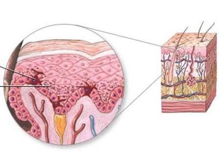 Chia sẻ cách trị sẹo thâm ở chân hiệu quả bất ngờ 2