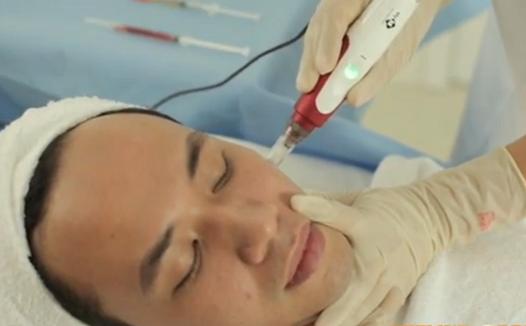 Điều trị sẹo lõm ở đâu hiệu quả 2015? 3