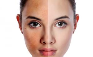 Đi tìm phương pháp tắm trắng an toàn cho làn da thuần khiết