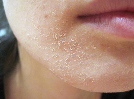 Đi tìm phương pháp tắm trắng an toàn cho làn da thuần khiết 2