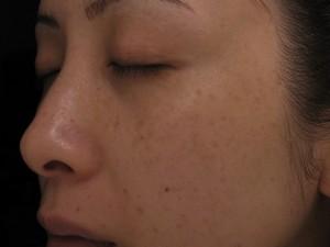 Có cách nào chữa được hết hoàn toàn tàn nhang?