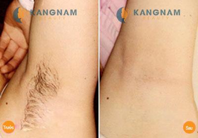 Bảng giá triệt lông vĩnh viễn tại Kangnam là bao nhiêu? 4