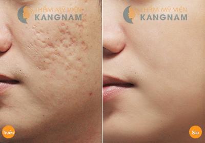 Điều trị sẹo lõm trên mặt bằng cách nào hiệu quả nhanh mà tiết kiệm? 2