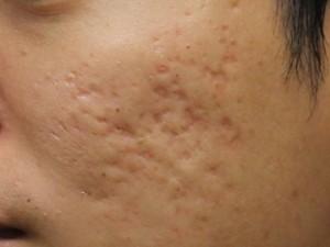 Điều trị sẹo lõm trên mặt bằng cách nào tiết kiệm?
