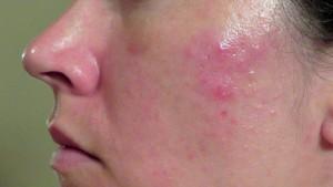 Làm sao chữa mụn sưng đỏ an toàn, hiệu quả nhất?