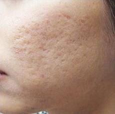 Sẹo rỗ lâu năm có trị khỏi hoàn toàn toàn được không? 1