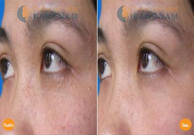 Trị mụn thịt ở mắt có ảnh hưởng đến ánh nhìn không? 3