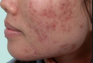 Sau điều trị sẹo mụn bằng kim lăn thì da có bị bào mòn không?