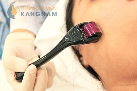 Sau điều trị sẹo mụn bằng kim lăn thì da có bị bào mòn không? 2