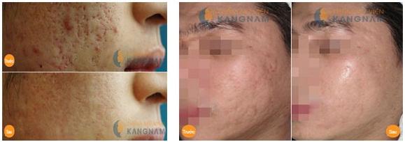 Sau điều trị sẹo mụn bằng kim lăn thì da có bị bào mòn không? 3