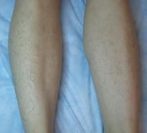 Làm thế nào để tẩy lông chân triệt để không gây đau rát?