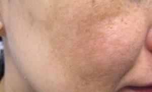 Cách trị nám da mặt hiệu quả và an toàn nhất