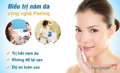 Công nghệ trị nám mảng bằng Peeling an toàn