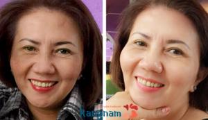 hình ảnh trước/ sau khi điều trị nám mảng