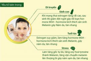 Nguyên nhân gây nám da và cách chữa trị nám hiệu quả