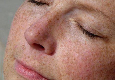 TOP 3 loại mặt nạ thuốc bắc trị nám và tàn nhang hiệu quả1