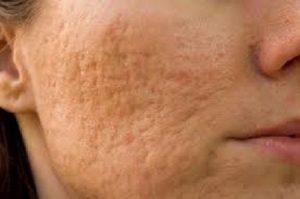 Sẹo lõm là gì? Trị sẹo lõm đơn giản trên mặt bằng cách nào cho hiệu quả?